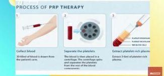 البلازما - تقنية علاجية تعتمد على حقن الدم في الوجه لاستخدامات طبية،صباحناغير،الكاملة، 17-3-2019