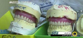 طب الأسنان ..عمل تقنيي الأسنان ، مجد دانيال ، صباحنا غير ، 21.2.2018 ، قناة مساواة الفضائية