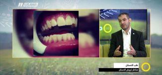 هل هناك  مخاطر لتبييض الأسنان ؟ - معاذ شواهنة -  صباحنا غير - 1.3.2018 - قناة مساواة الفضائية